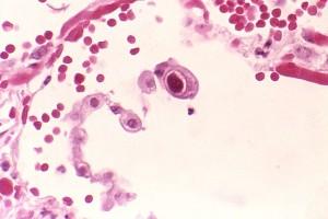 Cytomegalowirusowa infekcja pneumocytów płucnych.