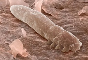 Eyelash-mites-under-a-microscope