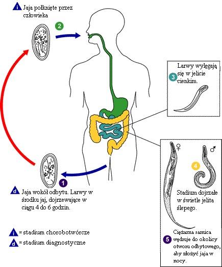 Cum arată femelele pinworm? Clisma elimina viermii