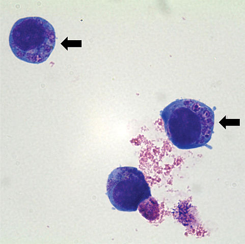 481px-Anaplasma_phagocytophilum_cultured_in_human_promyelocytic_cell_line_HL-60