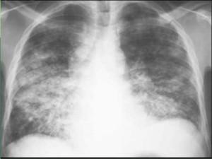 pneumonia-10-638