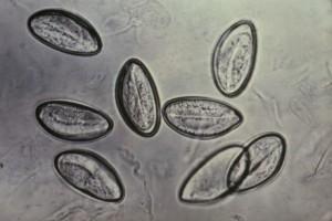 640px-Enterobius_vermicularis
