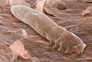 Eyelash-mites-under-a-microscope
