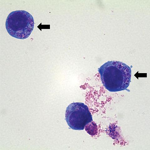481px-Anaplasma_phagocytophilum_cultured_in_human_promyelocytic_cell_line_HL-60