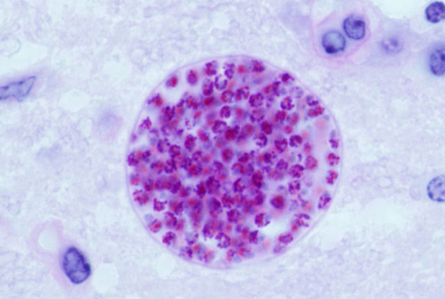 640px-Toxoplasma_gondii_tissue_cyst_in_mouse_brain
